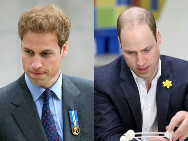 Principe William - Calvicie antes e depois